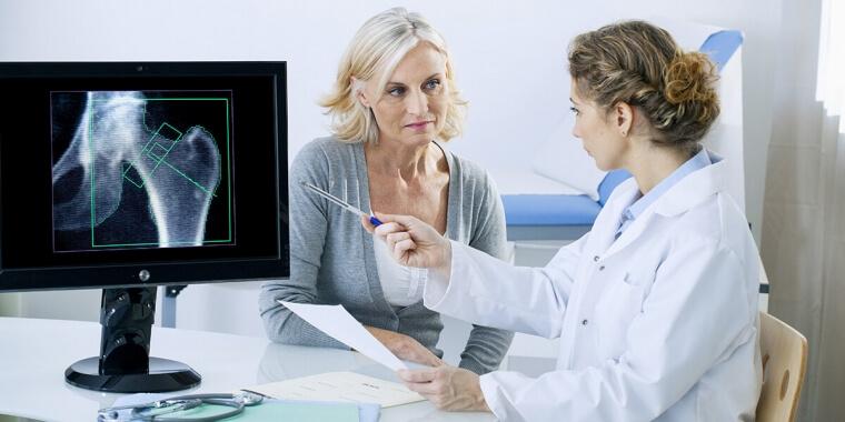 Osteoporosi: cause e prevenzione in vista della menopausa
